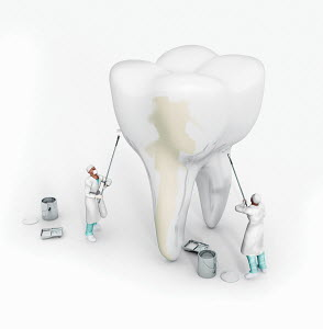 Dentists whitening large tooth with white paint