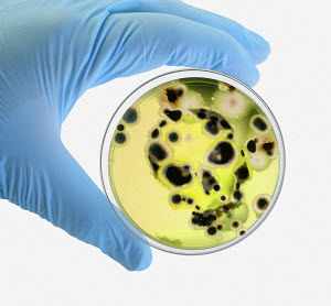 Digitally manipulated image of surgical glove holding petri dish with bacteria growth