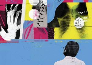 Doctor examining medical x-rays