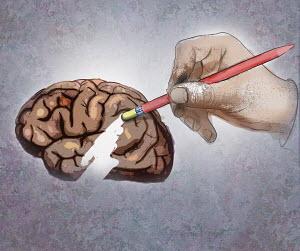 Large hand erasing part of brain