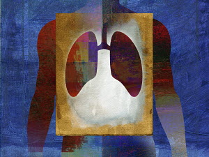 Lung problem