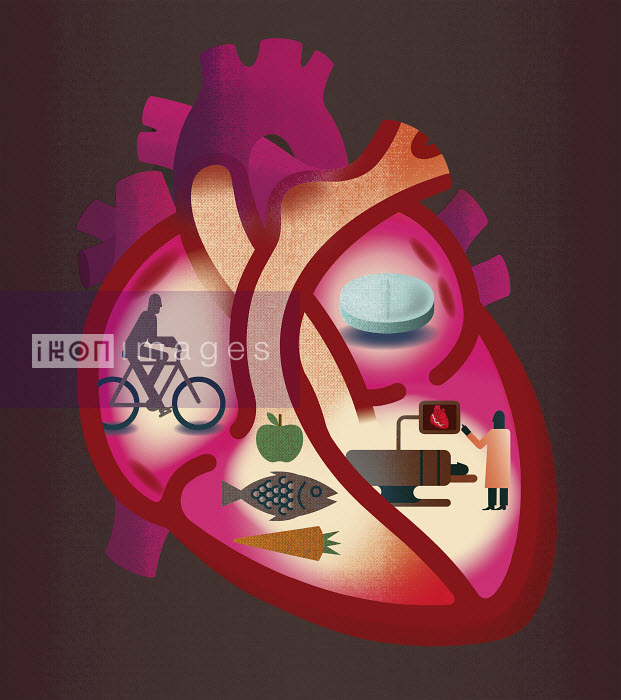 Cross section of heart contrasting heart disease and healthy lifestyle - Cross section of heart contrasting heart disease and healthy lifestyle - Andrew Baker