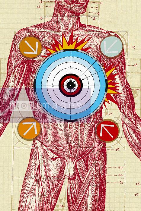 Arrows and bull�s-eye over male anatomical model - Arrows and bull�s-eye over male anatomical model - Matt Herring