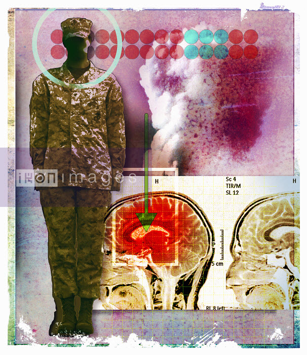 Image of inflamed brain next to soldier - Image of inflamed brain next to soldier - Roy Scott