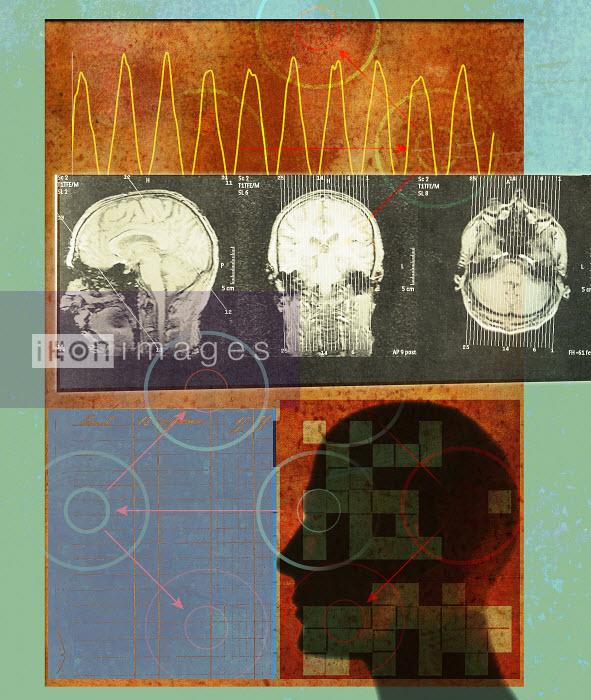 Roy Scott - Brain waves and MRI scan of man's head