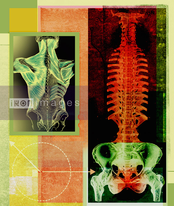 Roy Scott - X-ray of inflamed spine and pelvis and anatomical drawing