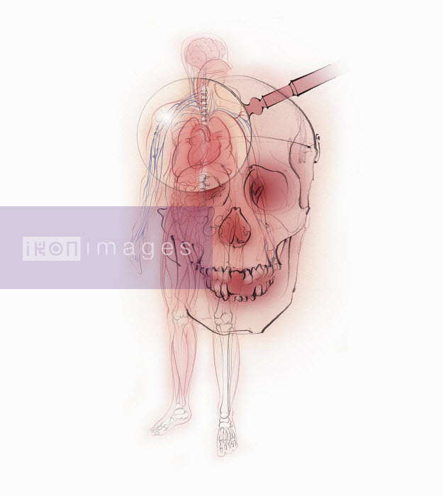 Magnifying glass over human skull and male body showing skeleton and internal organs - Magnifying glass over human skull and male body showing skeleton and internal organs - Juliet Percival