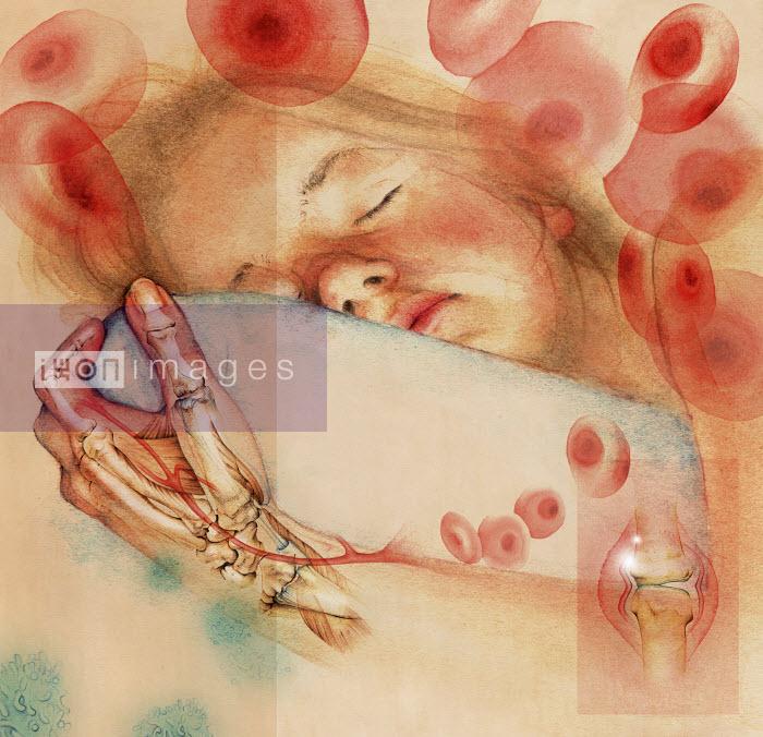 Sleeping girl with inflammatory arthritis in transparent hand - Sleeping girl with inflammatory arthritis in transparent hand - Juliet Percival