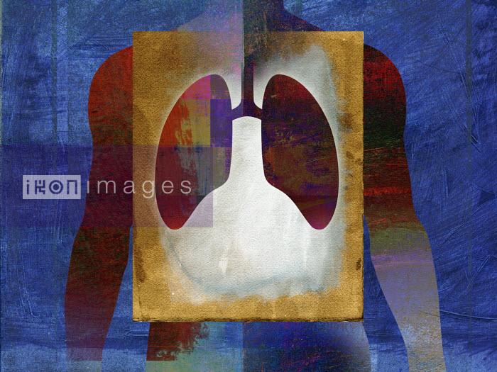 Lung problem - Roy Scott